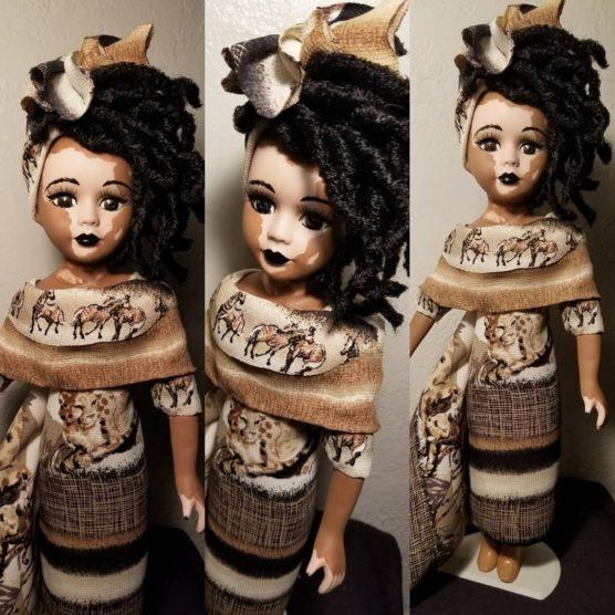 kim-customz-kim-black-vitiligo-inova-social-04