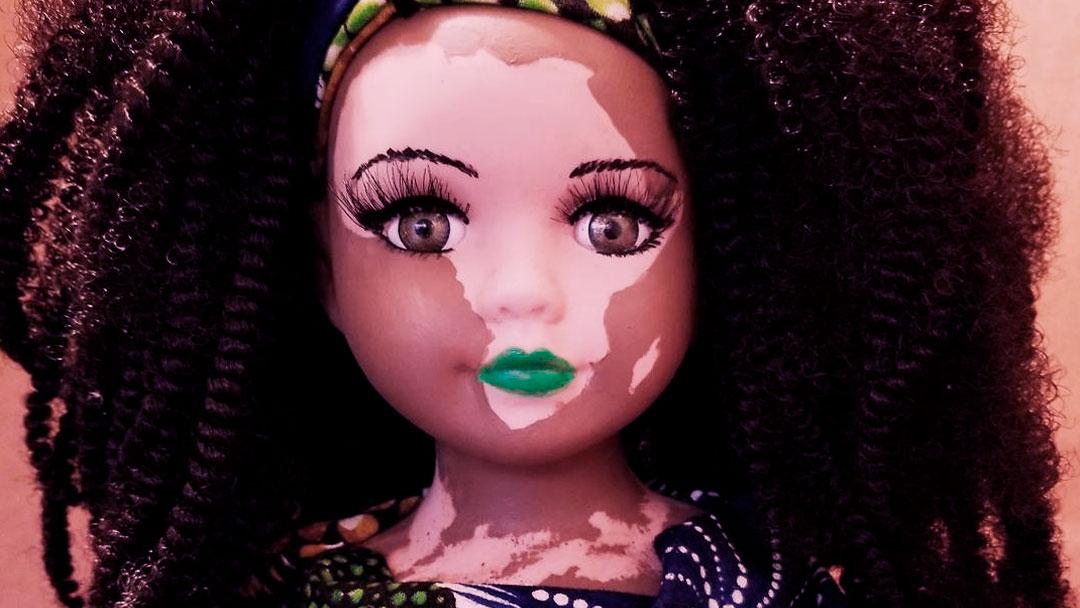 Artista cria boneca com vitiligo para promover a beleza