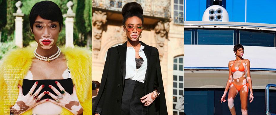 winnie-harlow-mulheres-negras-instagram-inovasocial