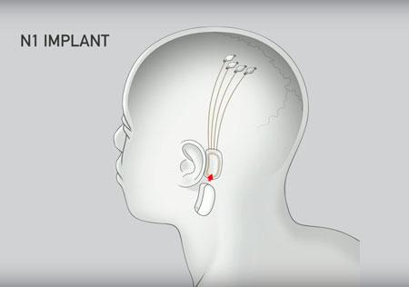 elon-musk-neuralink-tecnologias-sociais-inovacao-social-inovasocial-01