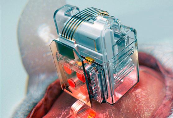 dispositivo-wearable-pesquisa-neurociencia-inovacao-social-inovasocial-01