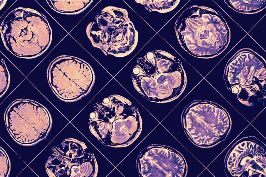 IBM e a Fundação Michael J. Fox desenvolvem pesquisa sobre doença de Parkinson usando machine learning