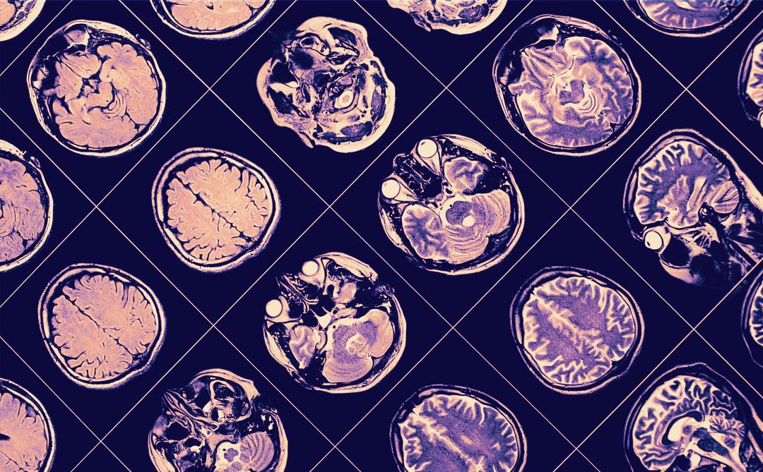 IBM e a Fundação Michael J. Fox desenvolvem pesquisa sobre Parkinson usando machine learning