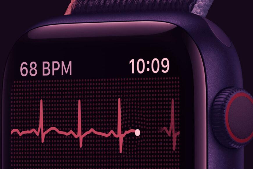 Apple Watch e nossa saúde: Os desafios da telemedicina e dos produtos focados no bem-estar