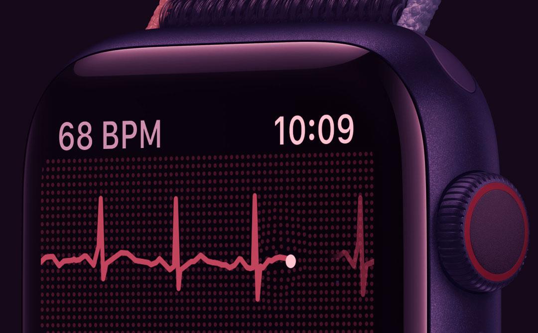 Apple Watch e a nossa saúde: Os desafios da telemedicina e dos produtos focados no bem-estar
